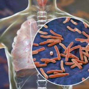 "Uu: ""Dödlig"" mutation gjorde tuberkulosbakterie resistent mot antibiotika"