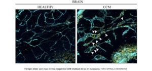 NATURVETENSKAP | Vener bakom missbildade blodkärl i hjärnan
