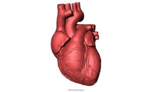 MEDICIN | Akademiska först med byte av mekanisk klaffprotes på slående hjärta