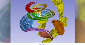 F&V | Ljudfrekvenskarta för innerörat skapad med avancerad röntgenteknik