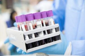 COVID-19 | Biomarkörer kan underlätta upptäckt av muskelsvaghet och risk för blodpropp hos covidpatienter