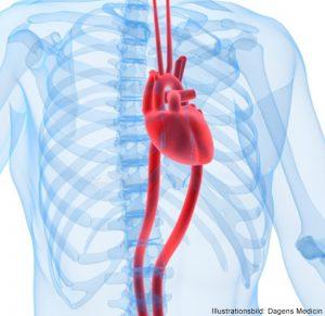 MEDICIN: Dödlighet i brustet kroppspulsåderbråck minskar i Sverige