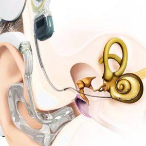 Fler patienter får hörselbevarande implantat på Akademiska