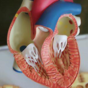MEDICIN | Färre drabbas och dör av hjärtinfarkt