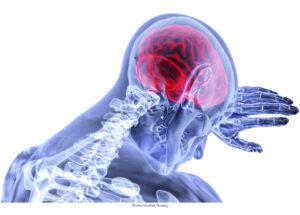 F&V | Betablockerare kan återställa missbildade blodkärl i hjärnan
